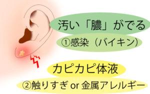 ピアスホールの腫れ(膿や体液は別の原因)