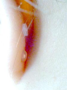 透明ピアス、耳の裏から