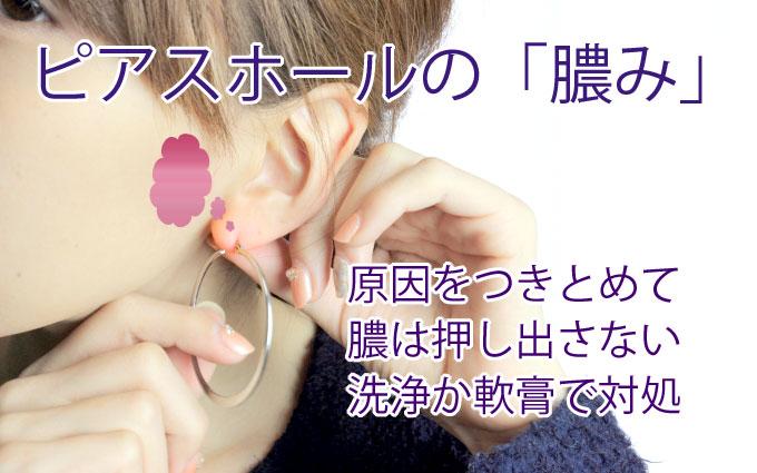 ピアスホールの膿み…原因を突き止めて、膿は押し出さない。洗浄か軟膏で対応。
