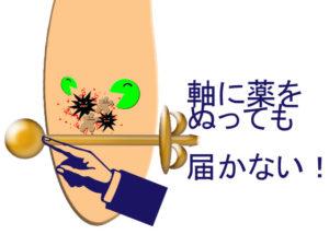 中で感染が広がると軸に薬をぬっても届かない