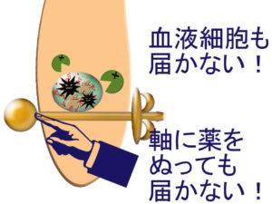粉瘤になると、薬も免疫機能も働かない